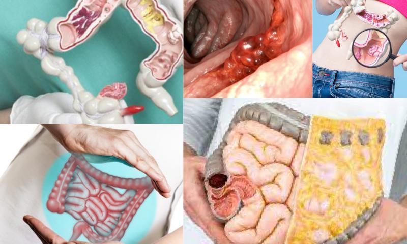 Karaciğerde Kitle Olması Ne Anlama Gelir?